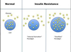 insulin_resistance_mechnaism