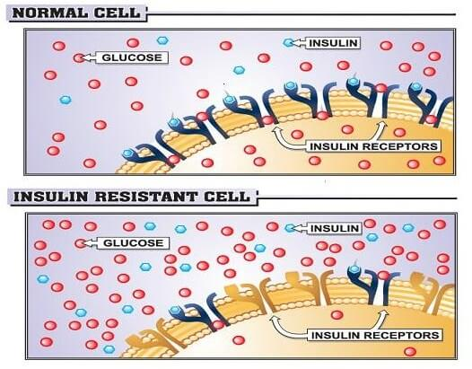 insulin-resistance-is-defined-as