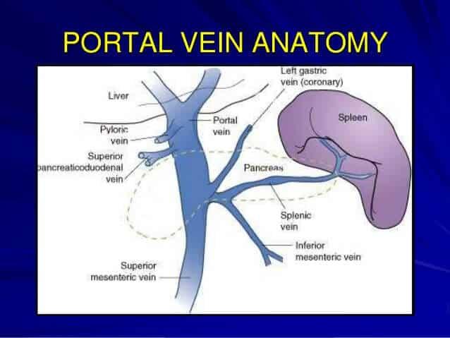 portal-hypertension